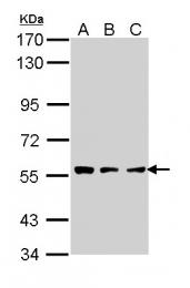 GTX113404 - Tripeptidyl-peptidase 1 (TPP1)