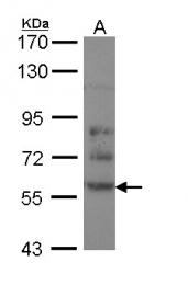 GTX113420 - DPYSL2 / CRMP2
