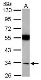 GTX113421 - Torsin-1A (TOR1A)