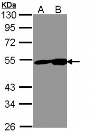 GTX113428 - Neuron specific enolase