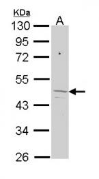 GTX113435 - Ferrochelatase