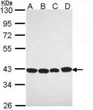 GTX113442 - Glutamine synthetase