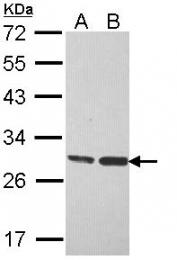 GTX113455 - HSD17B10 / ERAB