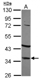 GTX113471 - IGFBP2