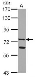 GTX113488 - Lactotransferrin