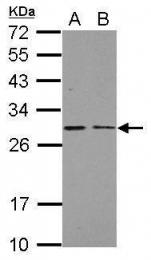 GTX113504 - Complex I subunit NDUFS3