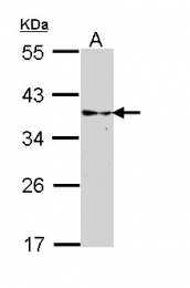 GTX113541 - RLBP1
