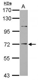 GTX113557 - ST14 / Matriptase
