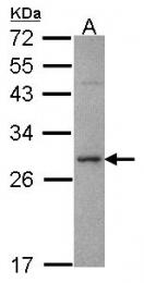 GTX113559 - Syntaxin 1A / STX1A