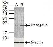 GTX113561 - Transgelin (TAGLN)