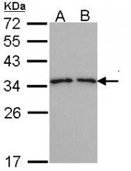 GTX113568 - Tropomyosin-3 (TPM3)