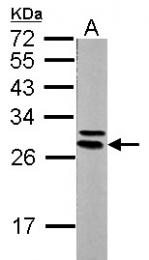 GTX113576 - 14-3-3 protein epsilon