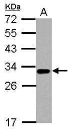 GTX113589 - TNFRSF14 / HVEM