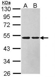 GTX113629 - Arginosuccinase