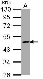 GTX113639 - Caspase-4