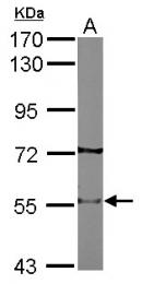 GTX113654 - Neuronal acetylcholine receptor subunit beta-2