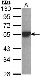 GTX113667 - CYP2D6