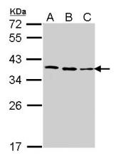 GTX113684 - FBL