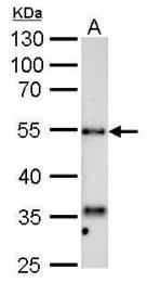 GTX113747 - HYAL1 / Hyaluronidase-1