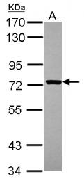 GTX113751 - CD122 / IL2RB