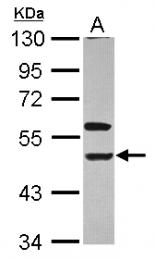 GTX113763 - CD158e / KIR3DL1