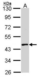 GTX113773 - MBNL1