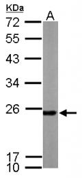 GTX113793 - Peroxiredoxin-1 / PRDX1