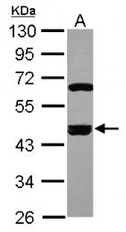 GTX113837 - SMARCB1