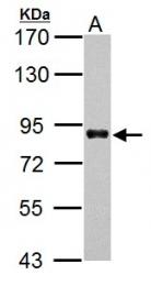 GTX113850 - HNF1 alpha / TCF1