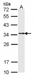 GTX113857 - Tropomyosin-1 (TPM1)