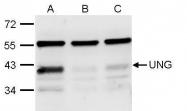 GTX113860 - Uracil-DNA glycosylase (UNG)