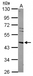GTX113912 - NR1H3