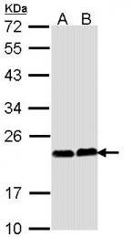 GTX113936 - Calcium-binding protein p22