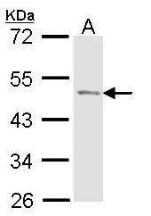 GTX114004 - ACPP /  Prostatic acid phosphatase