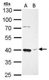 GTX114008 - BMI-1 / RNF51