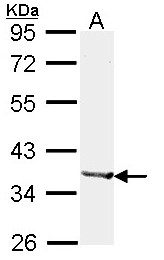 GTX114054 - Alcohol dehydrogenase 1B (ADH2)