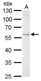 GTX114073 - Glucosylceramidase