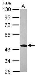 GTX114081 - 3-beta-HSD1 / HSD3B1