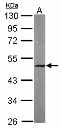 GTX114105 - SMARCB1