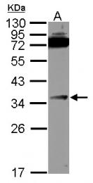GTX114130 - TNFRSF6B / DCR3