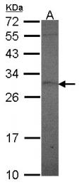 GTX114138 - Prolactin / PRL