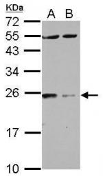 GTX114140 - 14-3-3 protein zeta/delta