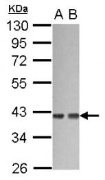 GTX114147 - G protein subunit alpha 12 / GNA12