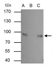 GTX114156 - Junction plakoglobin