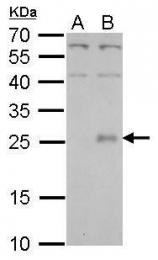 GTX114173 - CLCF1