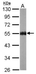 GTX114178 - AMPK gamma-2 chain / PRKAG2