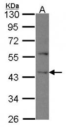 GTX114193 - DAPK2 / DRP-1