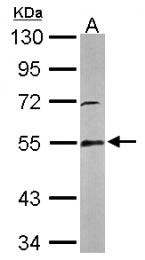 GTX114199 - Glutathione reductase