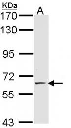 GTX114201 - CD62E / E-Selectin