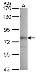 GTX114225 - GMP synthetase / GMPS